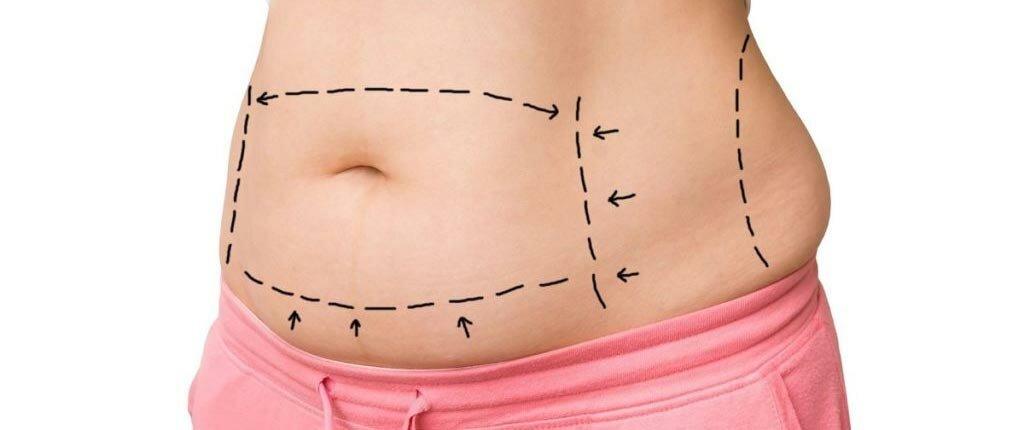 Абдоминопластику можно смело включить в список самых популярных косметических процедур