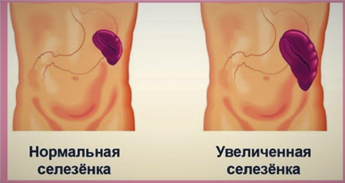 8 ранних симптомов рака крови, которые нельзя игнорировать