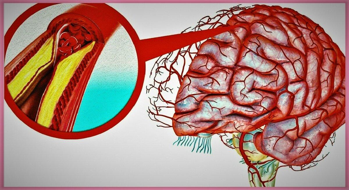 Простой рецепт, который очистит сосуды головного мозга