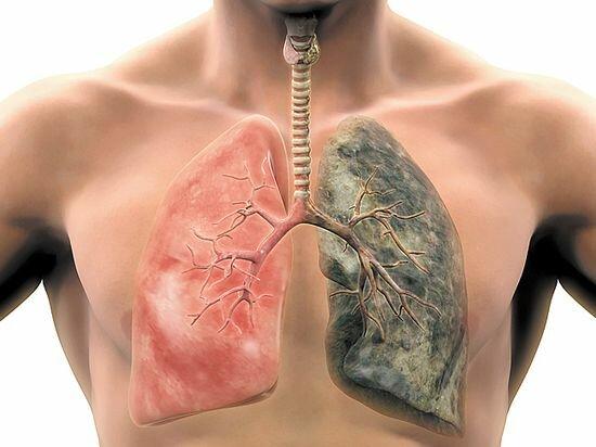 Медики назвали три необычных симптома рака легких на лице