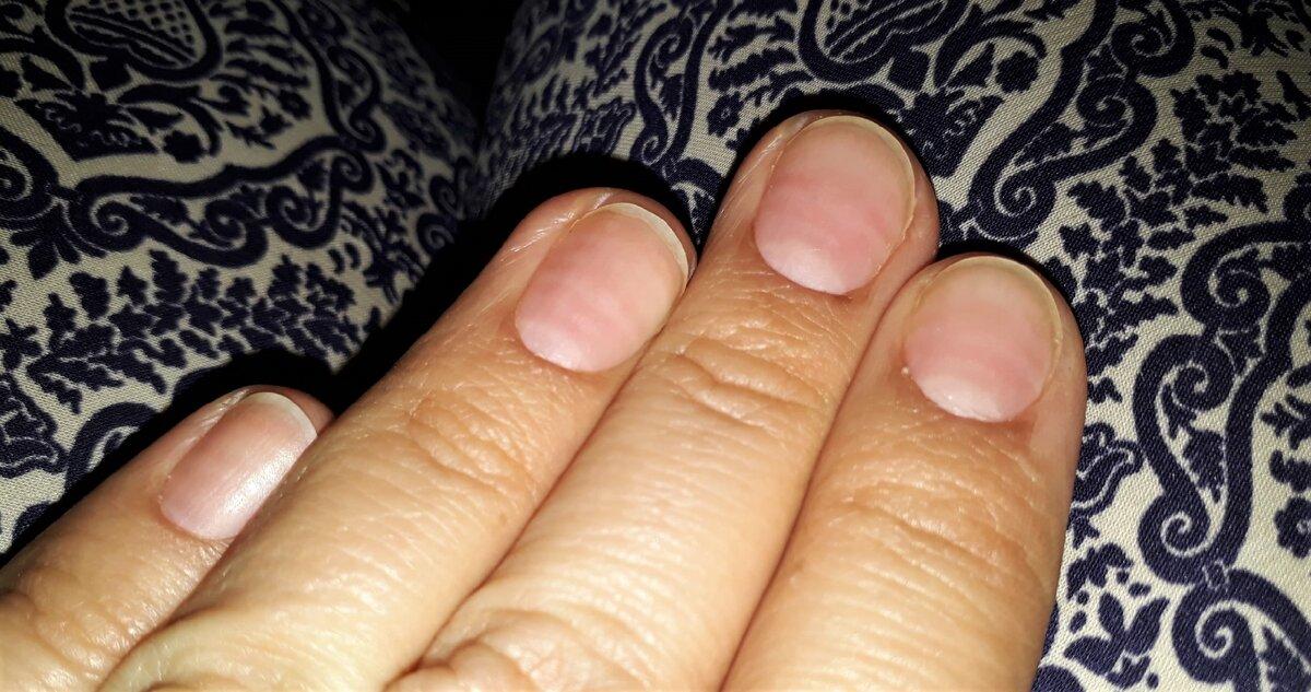 """Если присмотреться - видно, что ногти стали """"полосатыми""""."""
