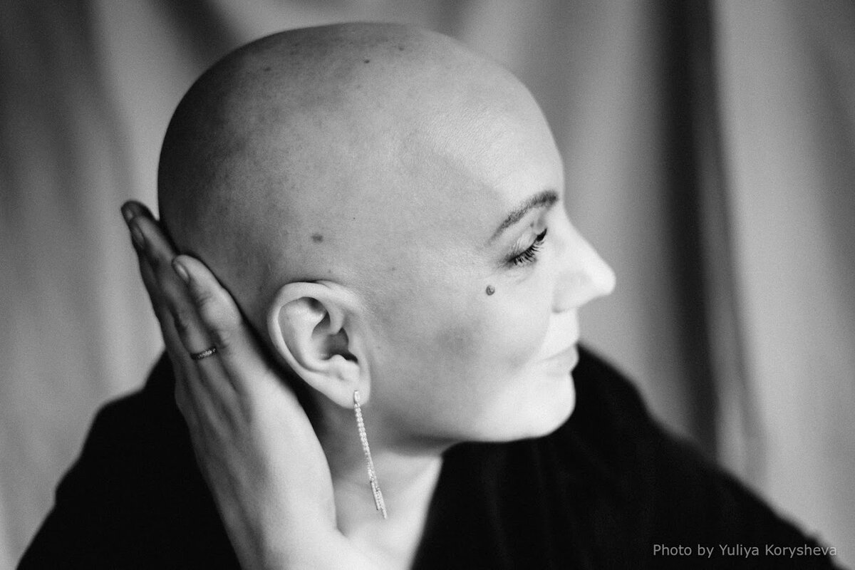 """Лысая фотосессия - возможность """"принять"""" себя. Фото Юлии Корышевой."""