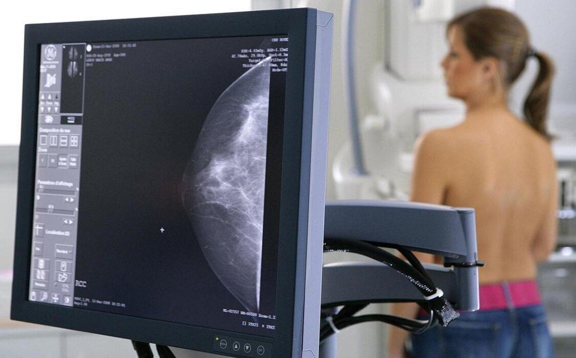 6 важный вещей, которые нужно знать о маммографии.